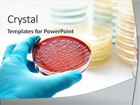 Bacteria yeast powerpoint templates crystalgraphics beautiful presentation featuring colonies of bacteria in blood image and a white colored foreground toneelgroepblik Images